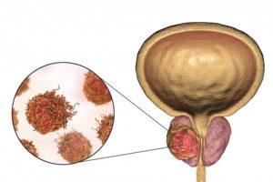 Диагностика и лечение рака предстательной железы